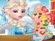 Elsa Frozen Cura de los Pies