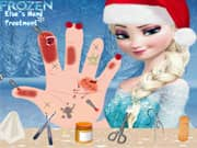Elsa Frozen Tratamiento de la Mano